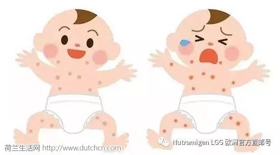 冷春后遗症,宝宝湿疹总不好,99%的妈妈都犯了这样的错误