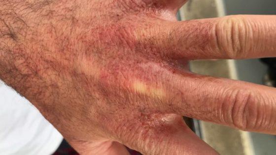 burned-hand-ikea-560x315.jpg